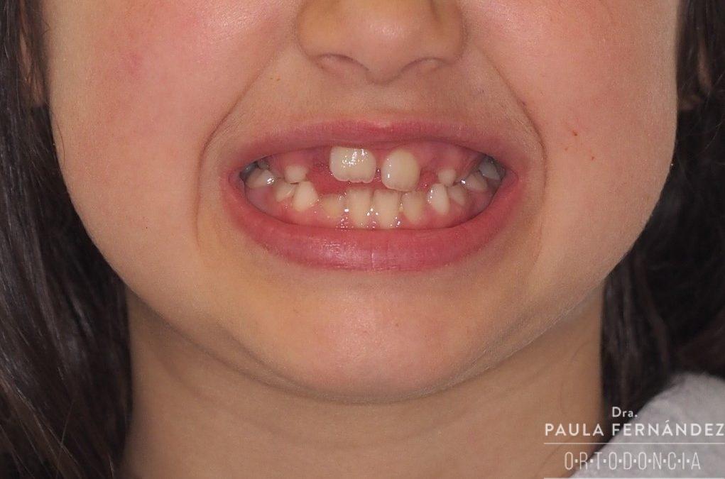 Compresión maxilar