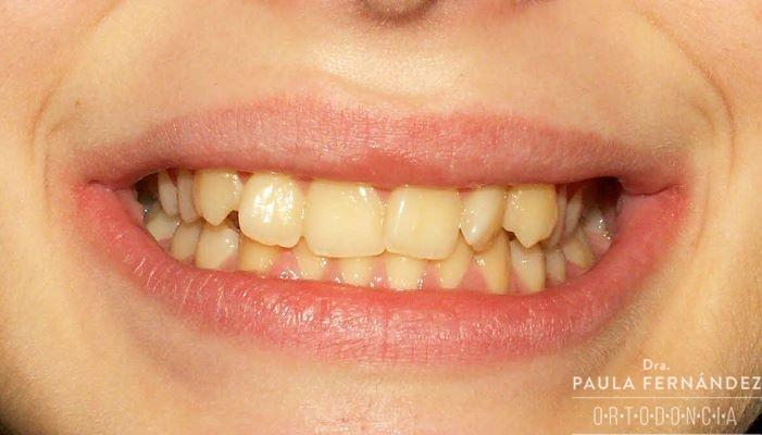Malposición dentaria